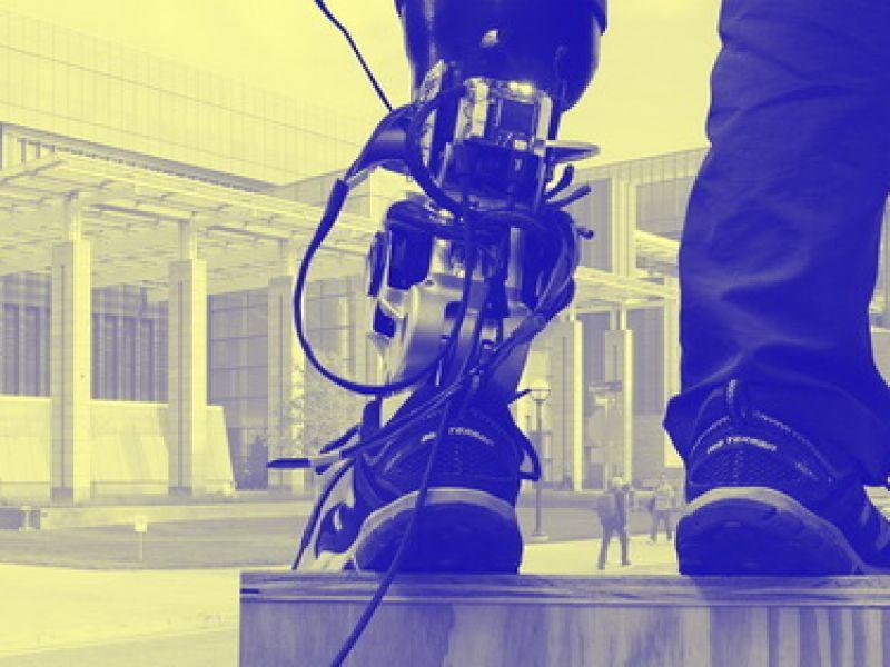 Chi nhân tạo - thêm triển vọng cho người khuyết tật