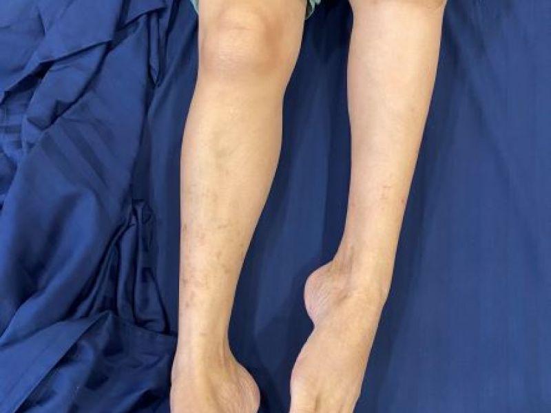 Lần đầu tiên thay thế thành công xương khớp nhân tạo in 3D cho bệnh nhân khuyết tật suốt 18 năm